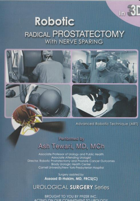Robotic Radical Prostatectomy With Nerve Sparing W 3d Glasses Dvd Video Movie Ebay